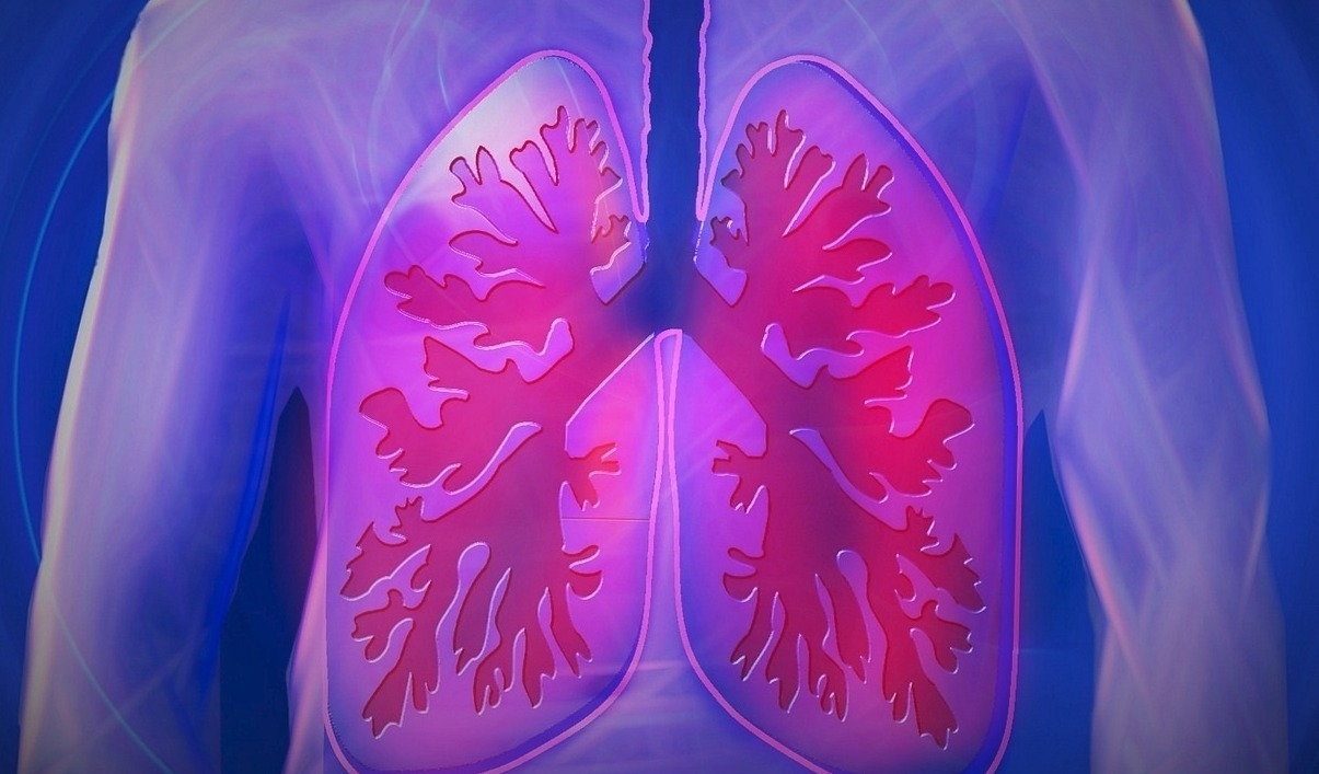 Lung Cancer Cases Linked to Air Quality! What's The Solution to That?!